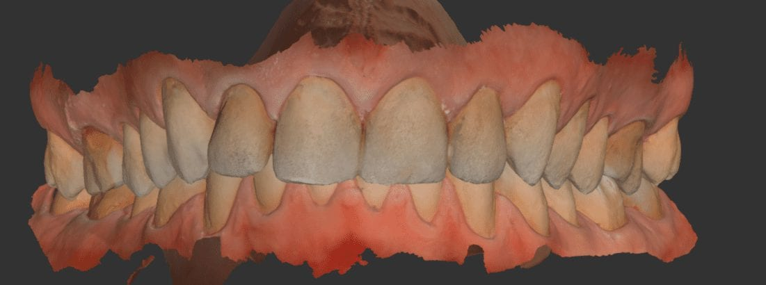 Smile Design and Makeover with Medit i500 and exocad | CAD