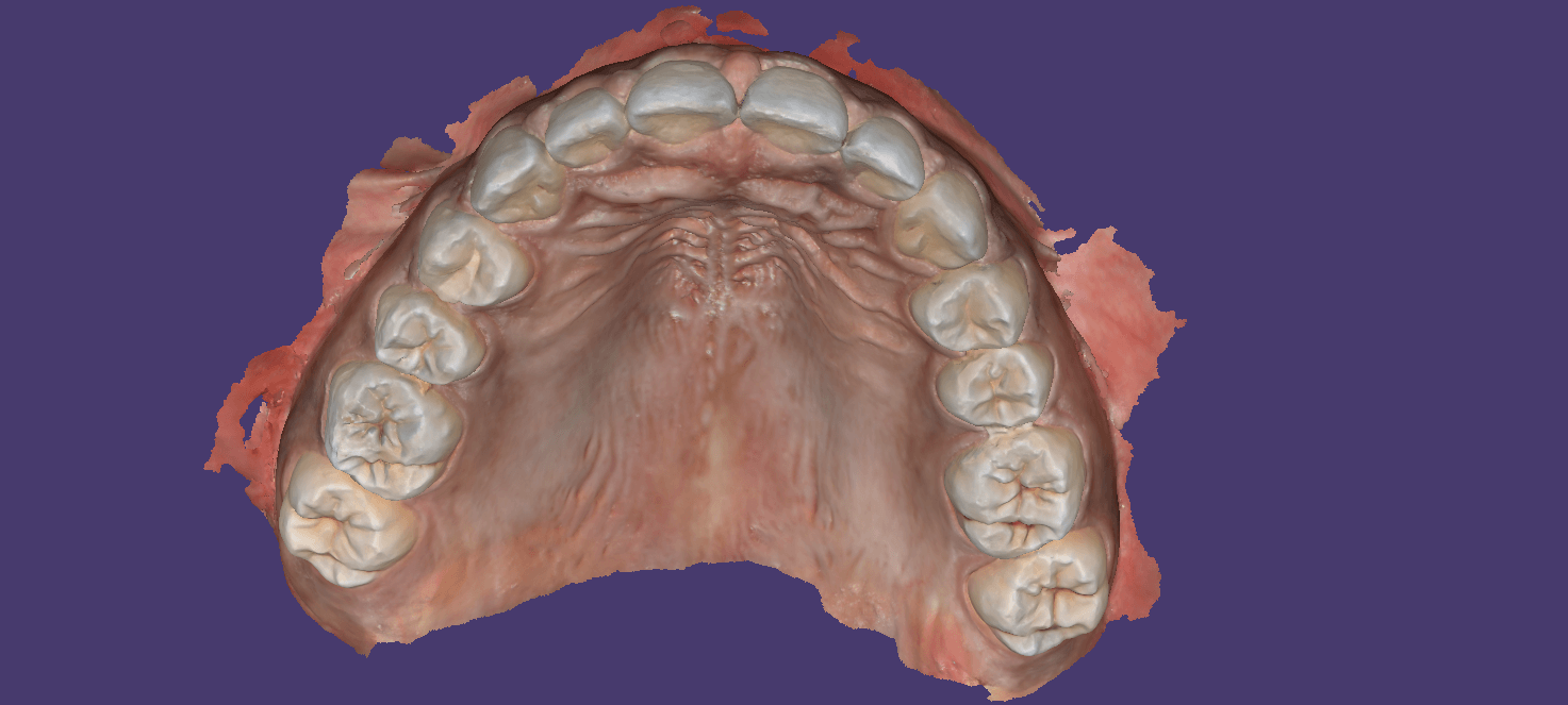 Digital Impressions for Immediate Dentures | CAD-Ray com