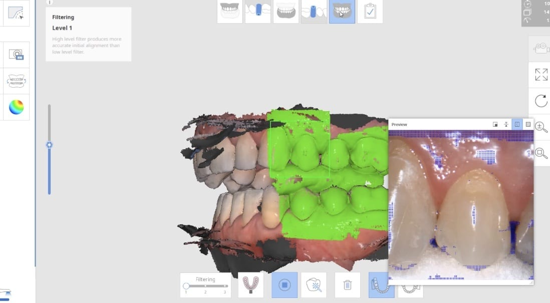 """Video demonstratring how we capture the patient's left buccal bite in """"Occlusion 1 Window"""