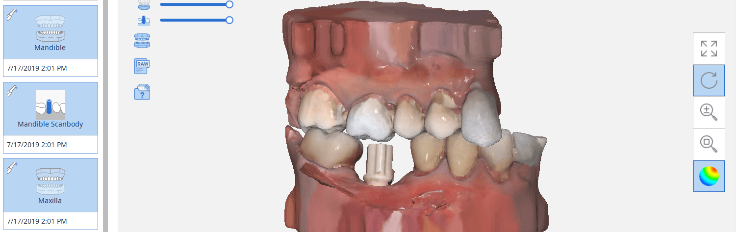 Launch exocad Direct from Medit i500 for Custom Abutment