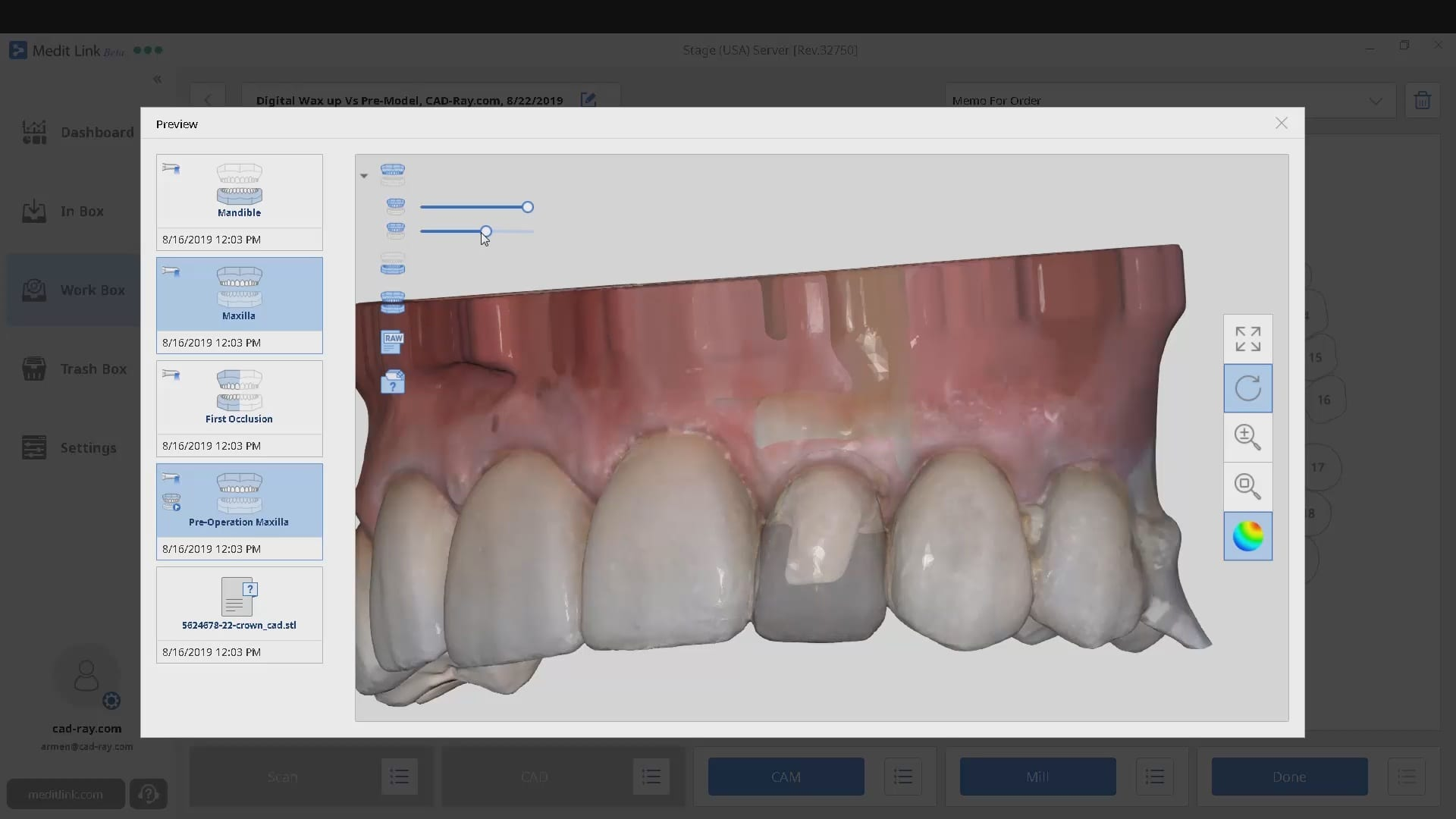 Digital Copy Milling Vs. Scan Pre-Op Model