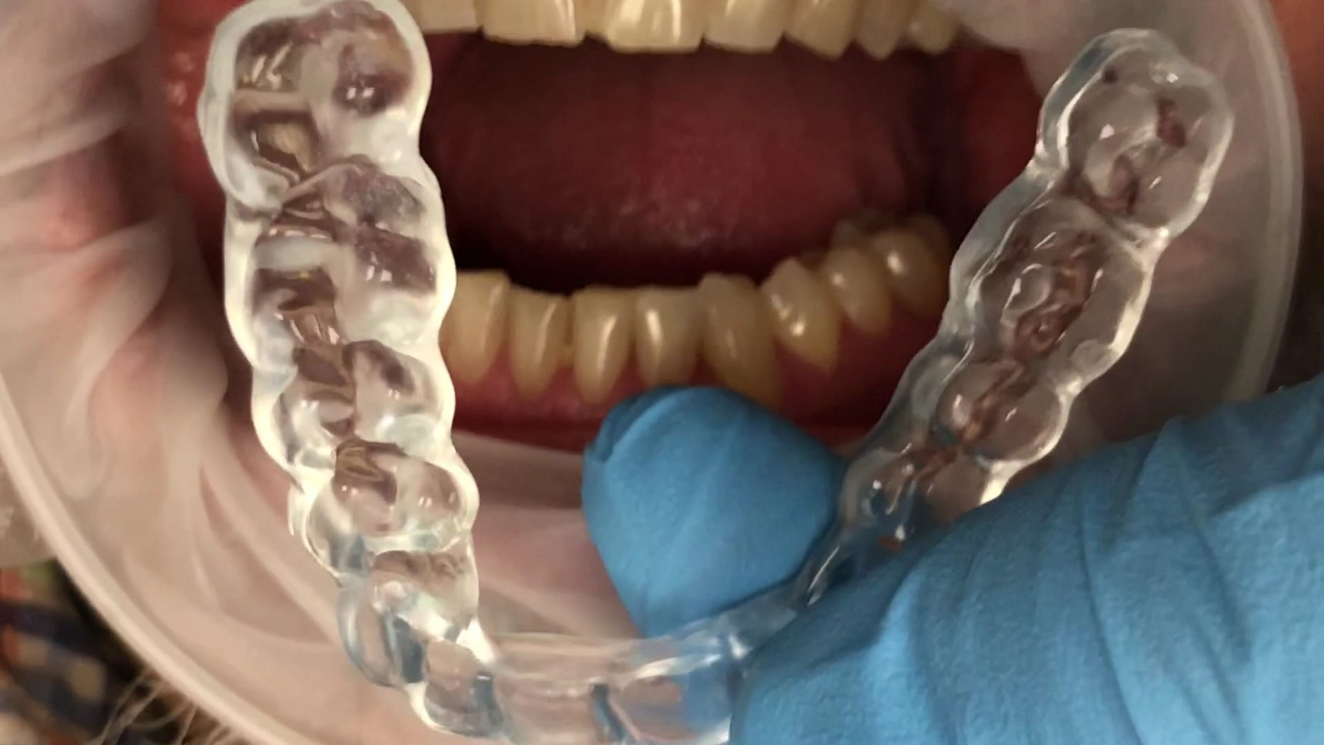 Digitally Desgined and Milled Occlusal Guard